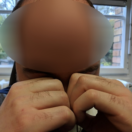 eye rubbing with knuckles, defeatkeratoconus.com
