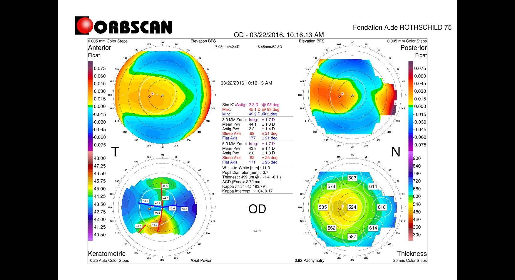 orbscan map of an early keratoconus