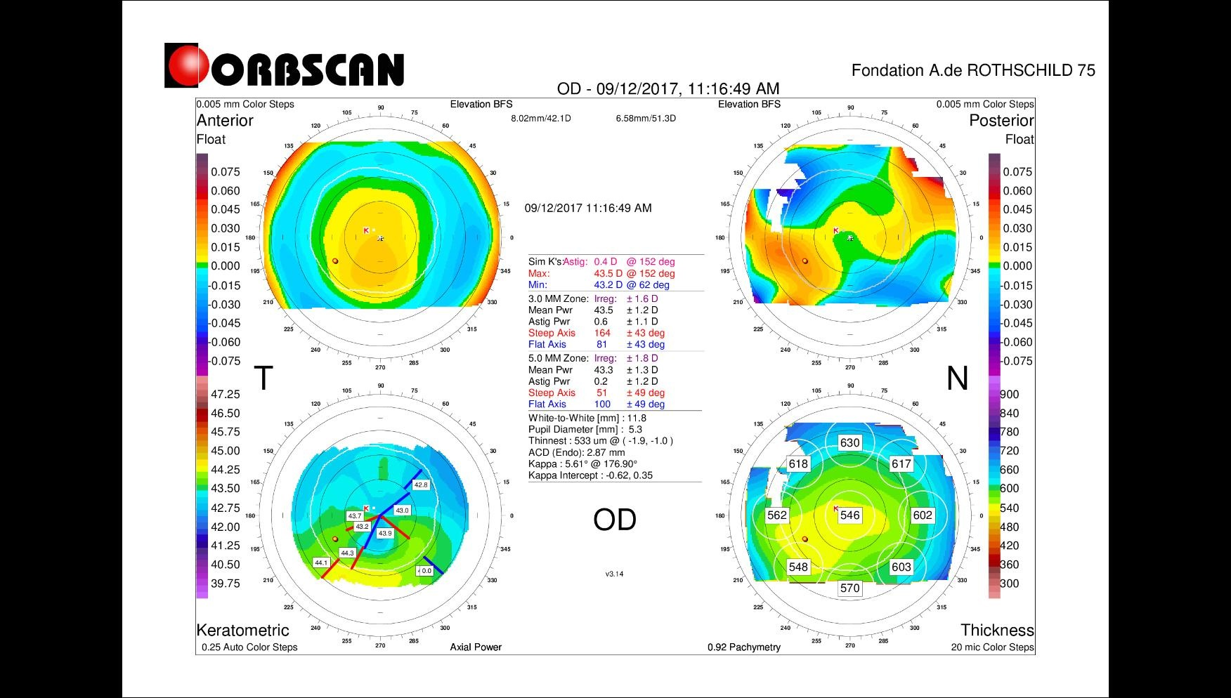 corneal irregularities on orbscan map