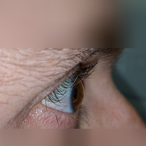 profile keratoconus right eye defeatkeratoconus.com