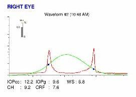 Ocular Response Analyzer, ORA map, corneal biomechanics, keratoconus