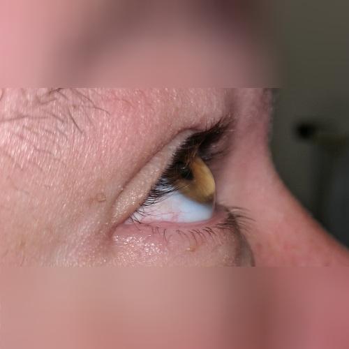 pellucid marginal degeneration corneal profile PMD defeatkeratoconus.com