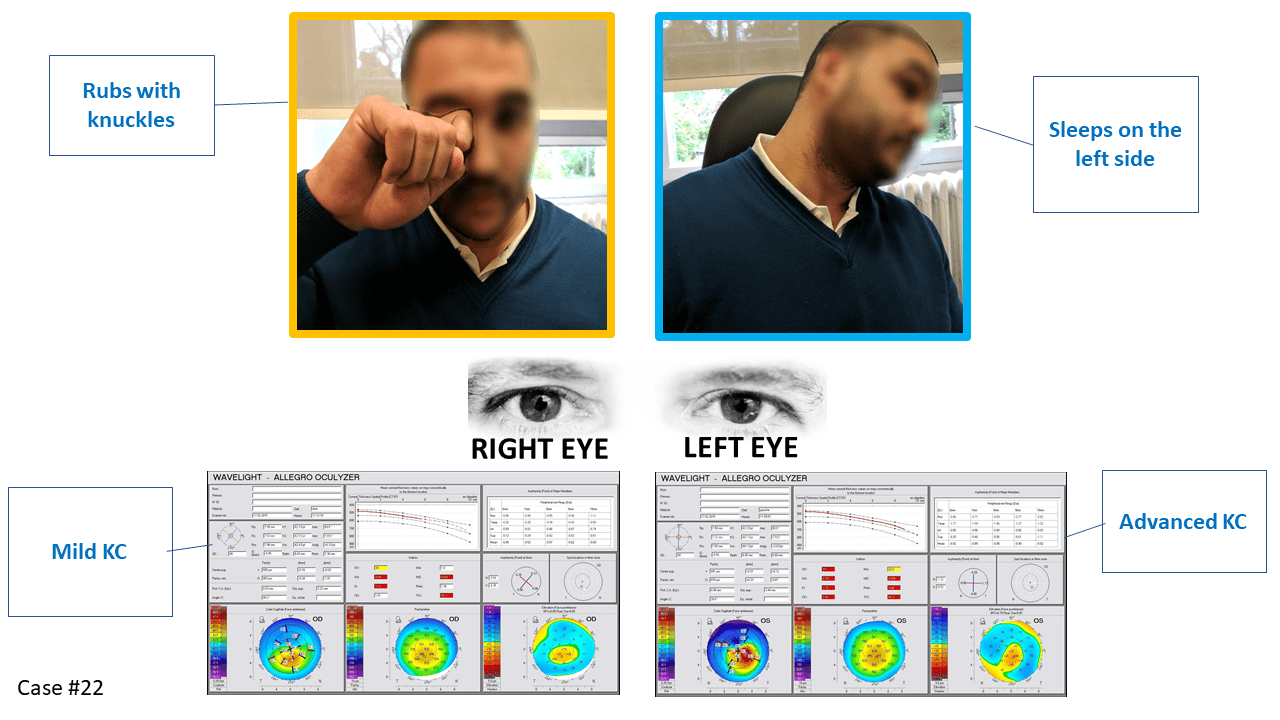 keratoconus more pronounced on the left side, picture of eye rubbing and sleeping position