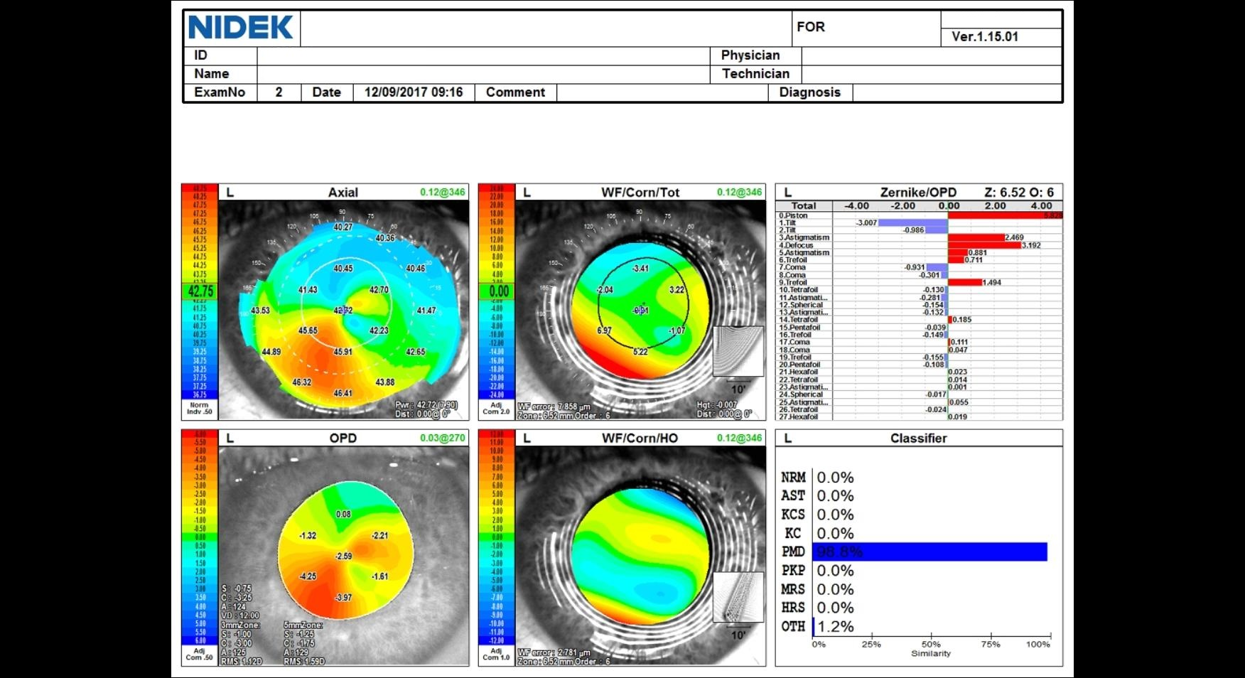 OPDscan III topography and aberrometry data in an eye with post LASIK ectasia.