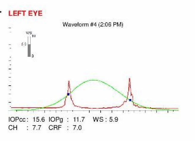 ocular response analyzer examination
