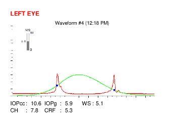 ocular response analyzer (ORA) waveform map in an eye with post LASIK ectasia