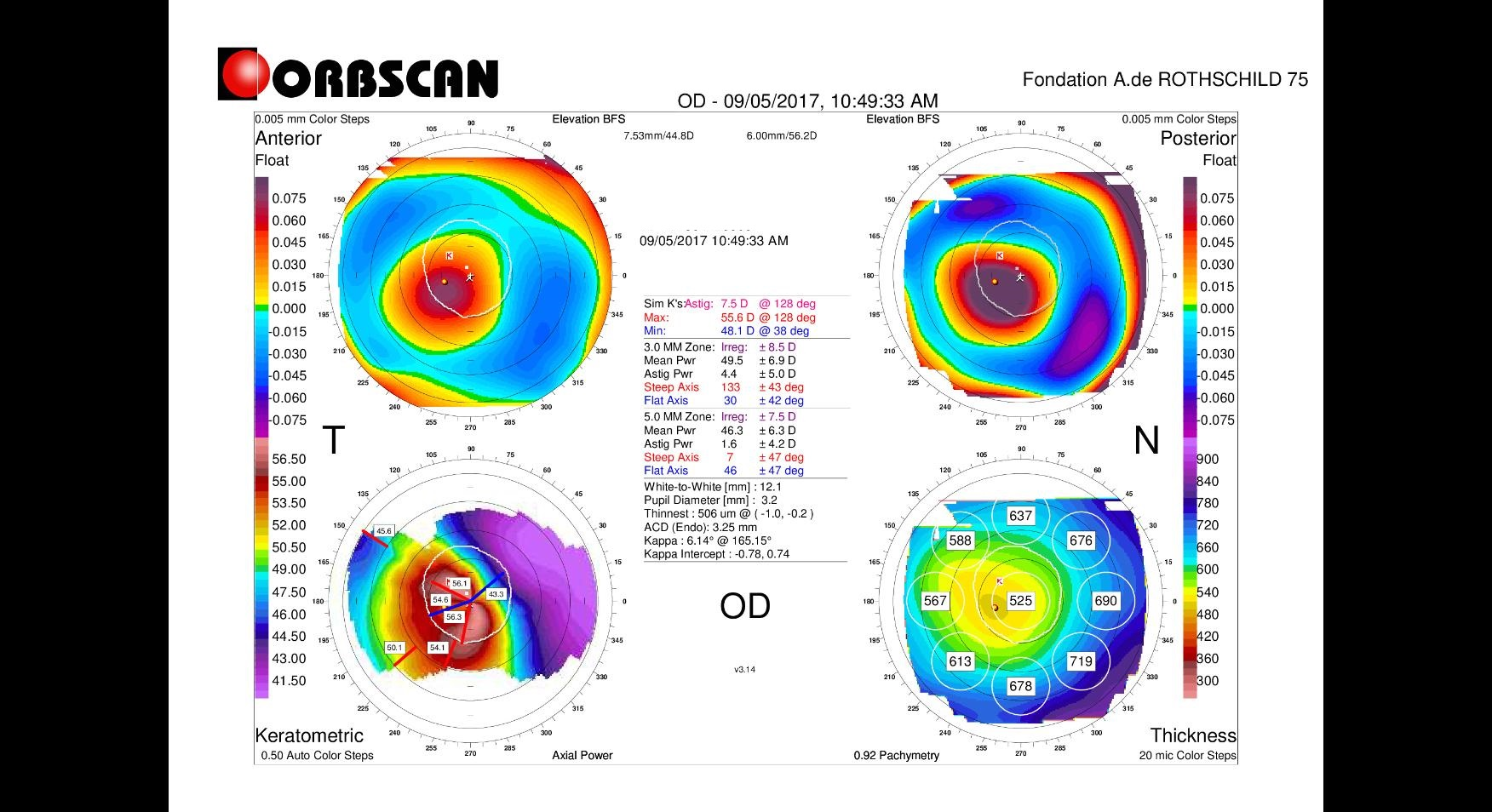 orbscan map of an eye with keratoconus