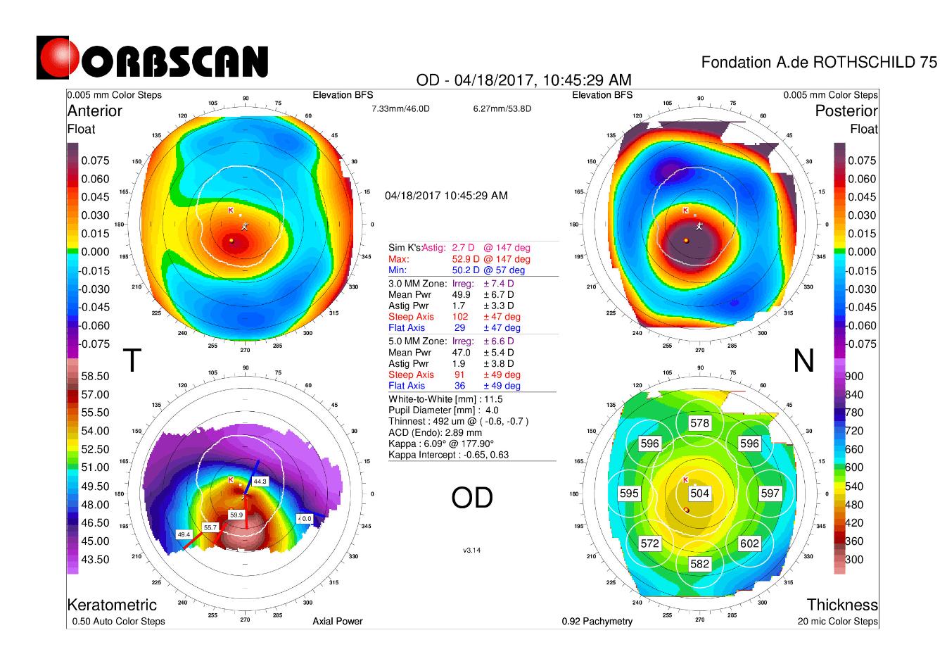 Orbscan map of an advanced keratoconus eye