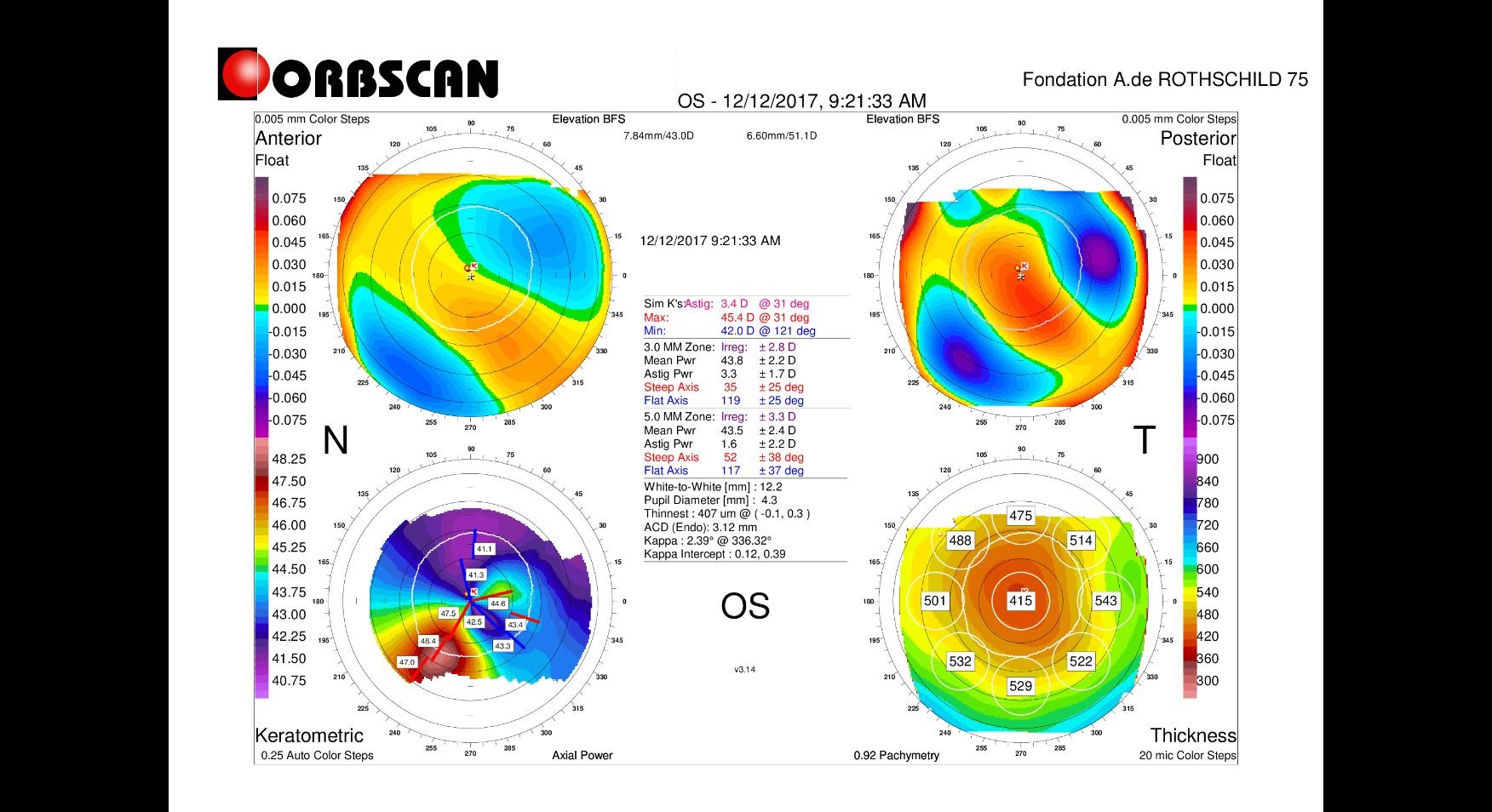 Orbscan map post LASIK ectasia stability