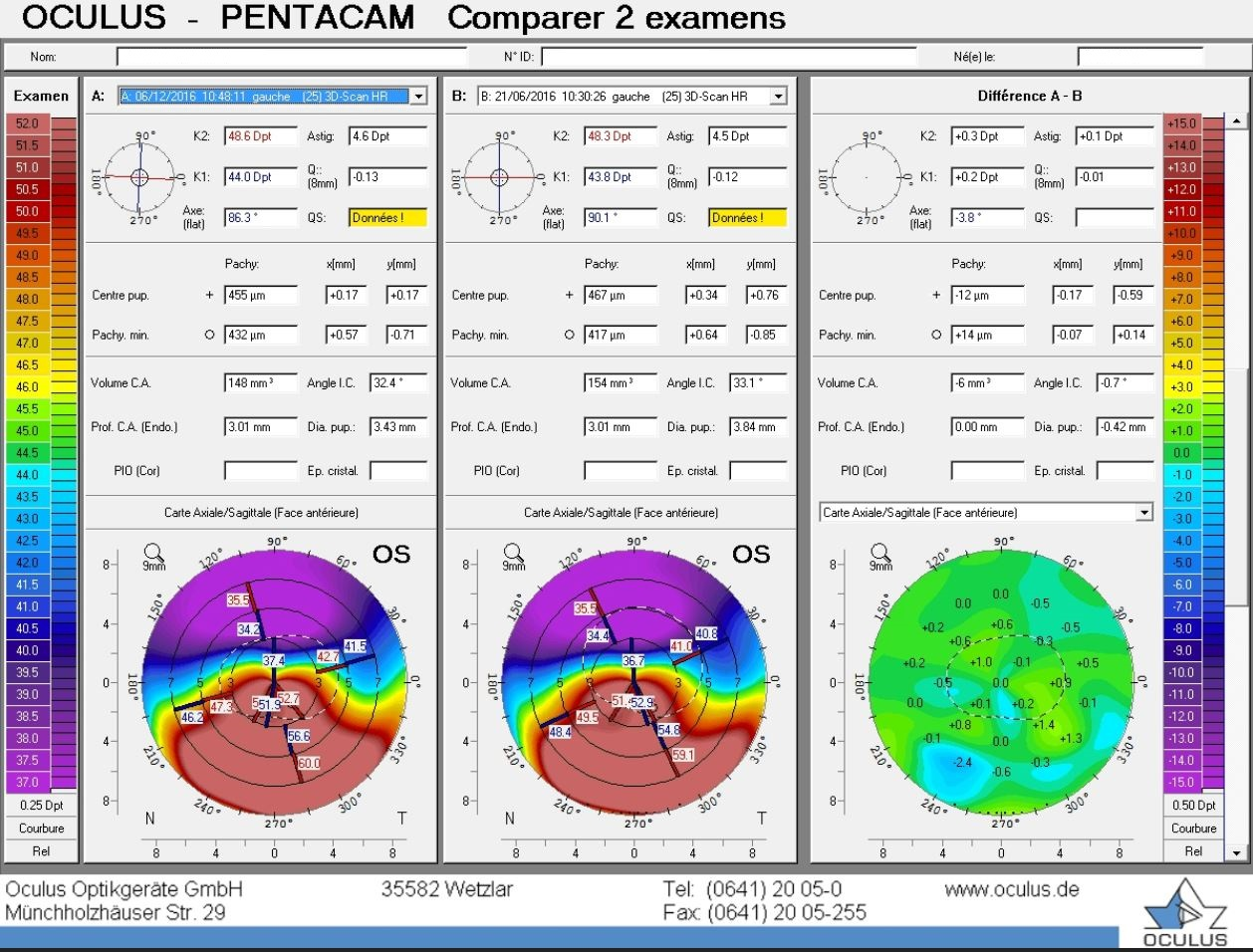 difference map pentacam stability of post LASIK ectasia