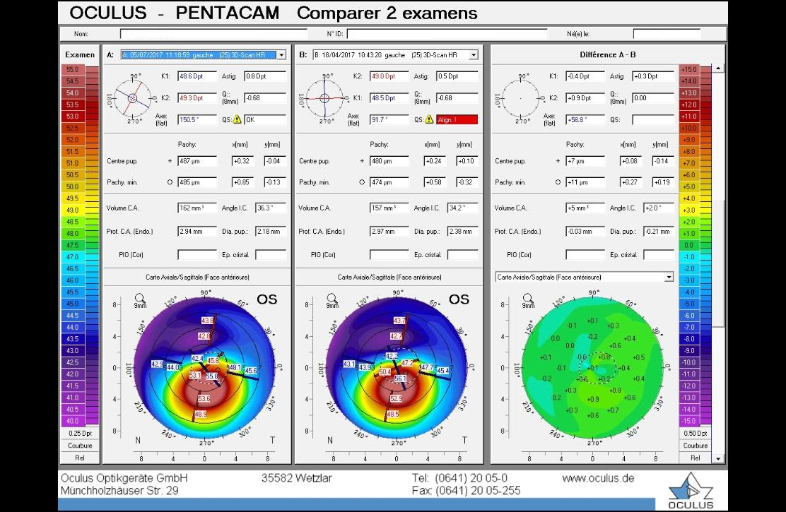 difference map, corneal topography, keratoconus eye