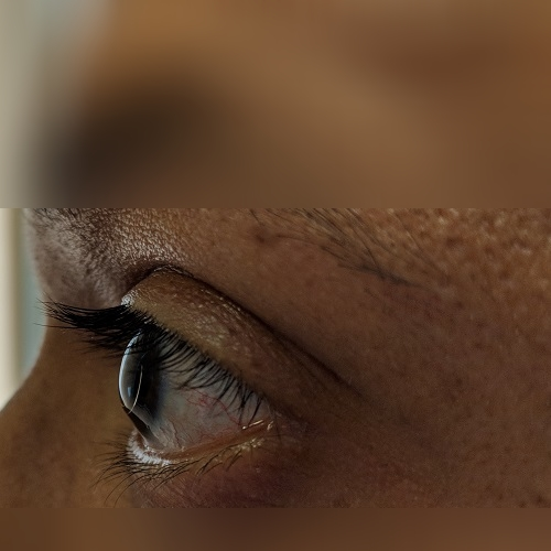 Left eye profile with intacs