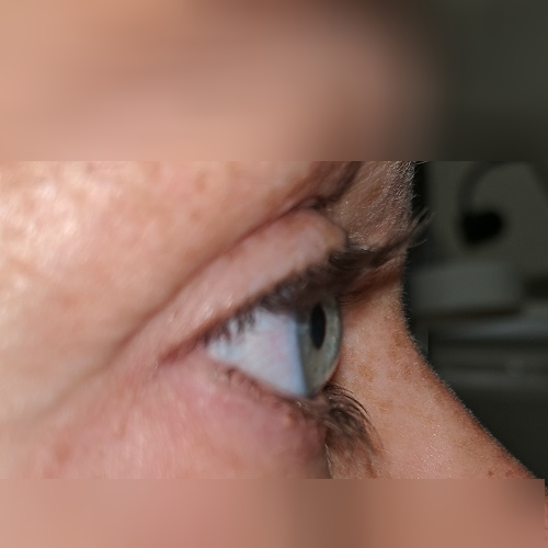 photo of the right eye profile