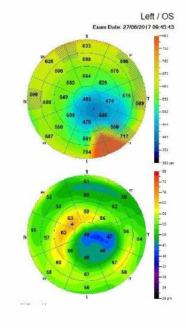 OCT epithelial corneal mapping