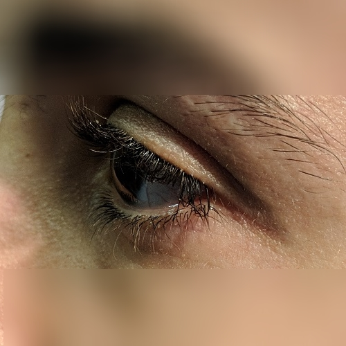 Left corneal profile