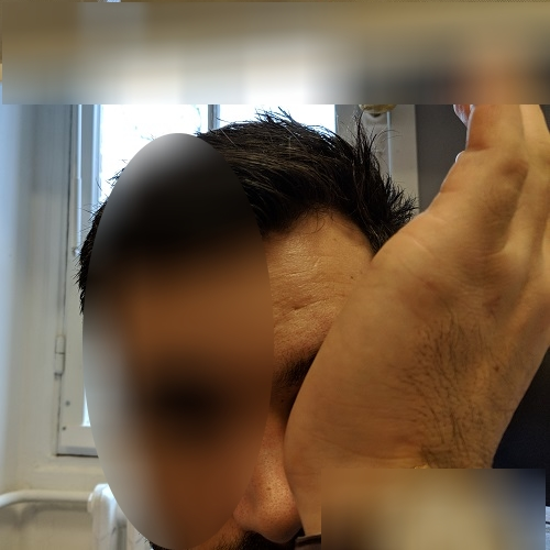 patient rubbing his left eye with the hand palm
