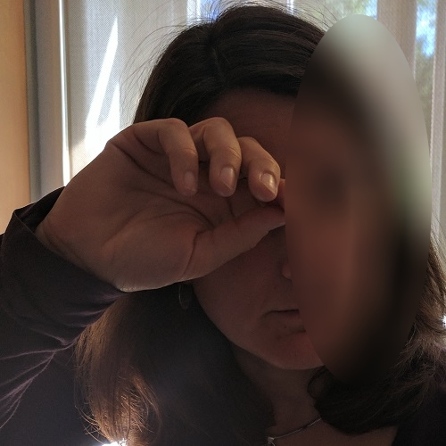 patient rubbing her right eye
