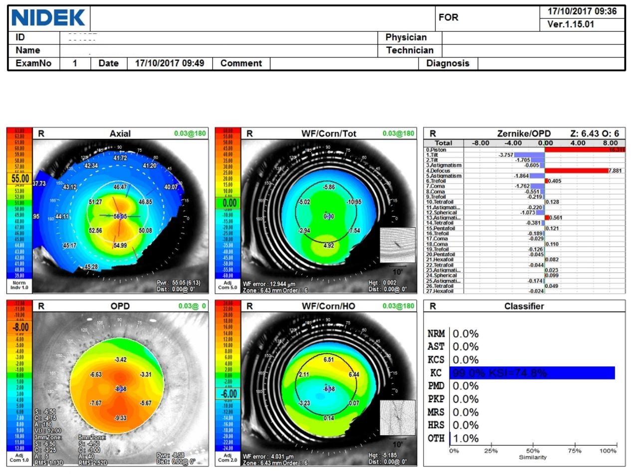 opdscan map of an eye with keratoconus