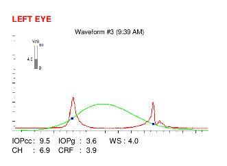 ocular response analyzer examination of an eye with keratoconus