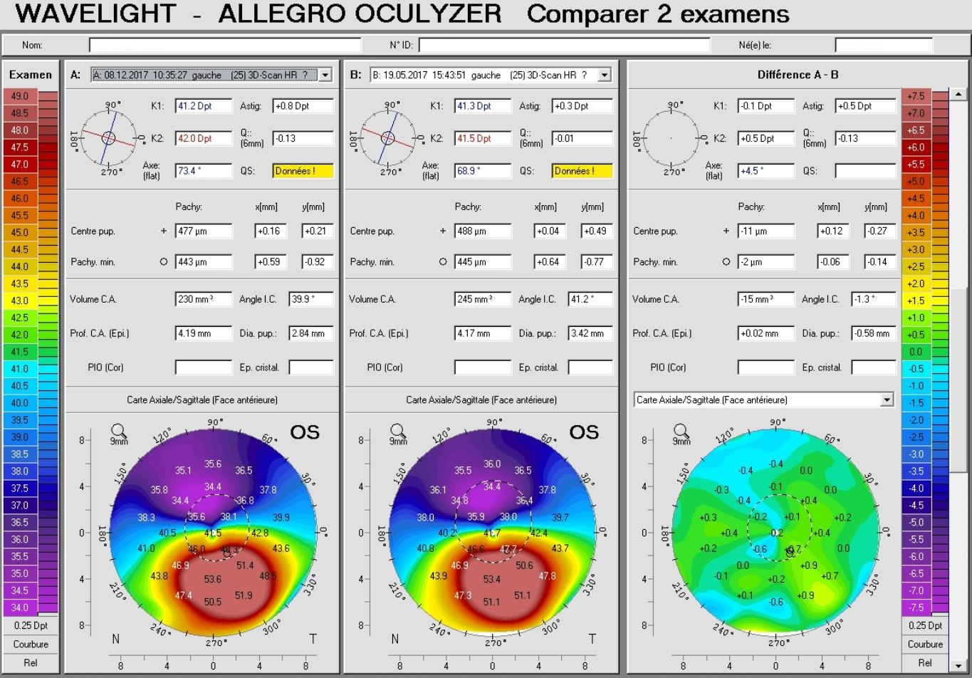 Keratoconus progression difference map pentacam