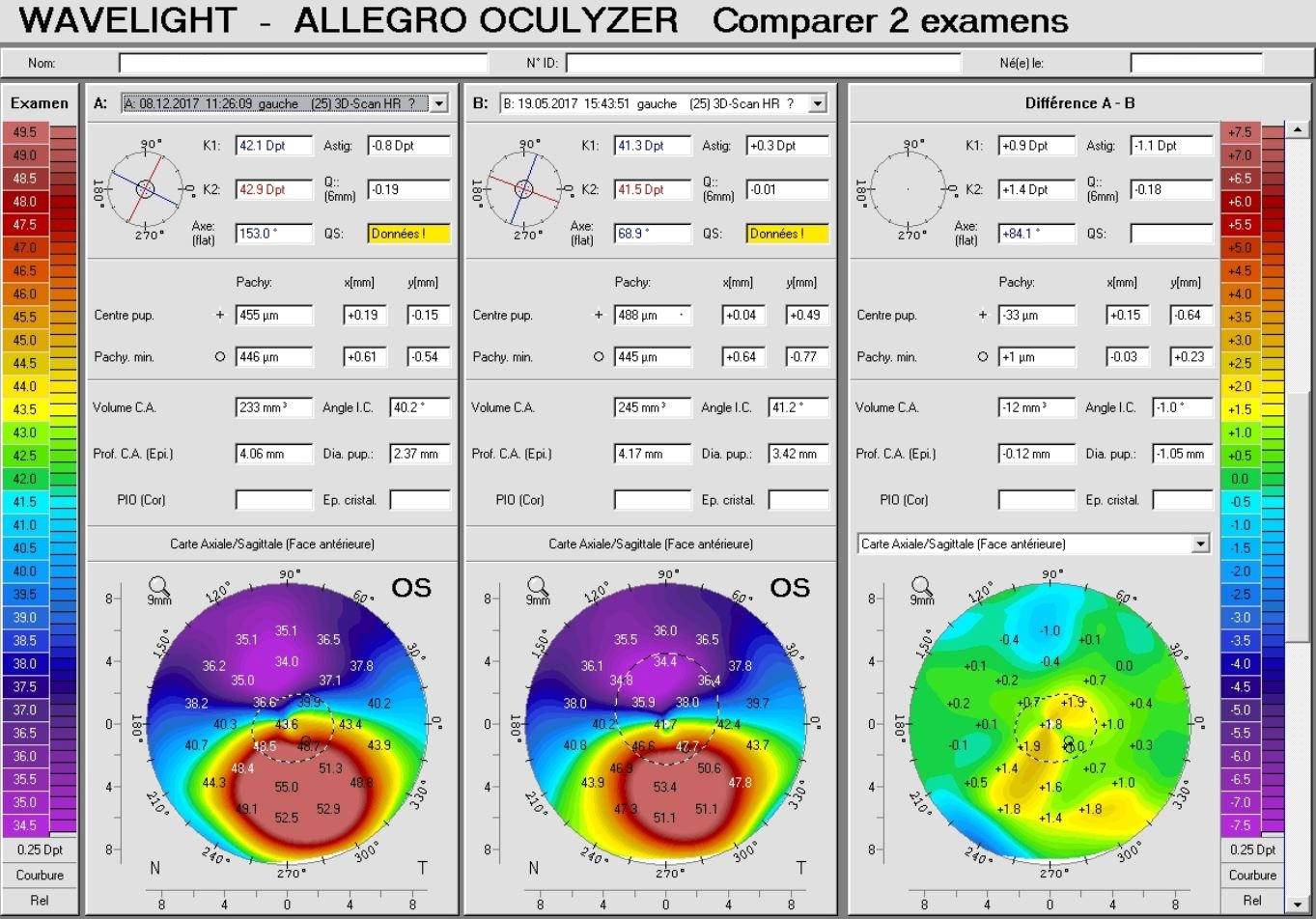 pentacam difference map, eye rubbing