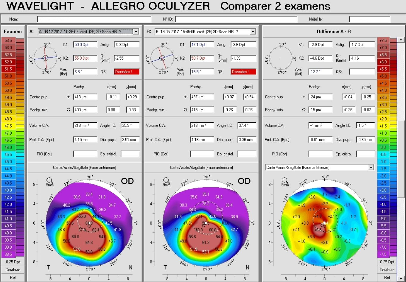 Pentacam difference map in an eye with keratoconus progression