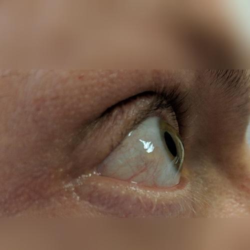 right corneal profile picture