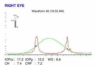 ocular response analyzer of an eye with post LASIK ectasia