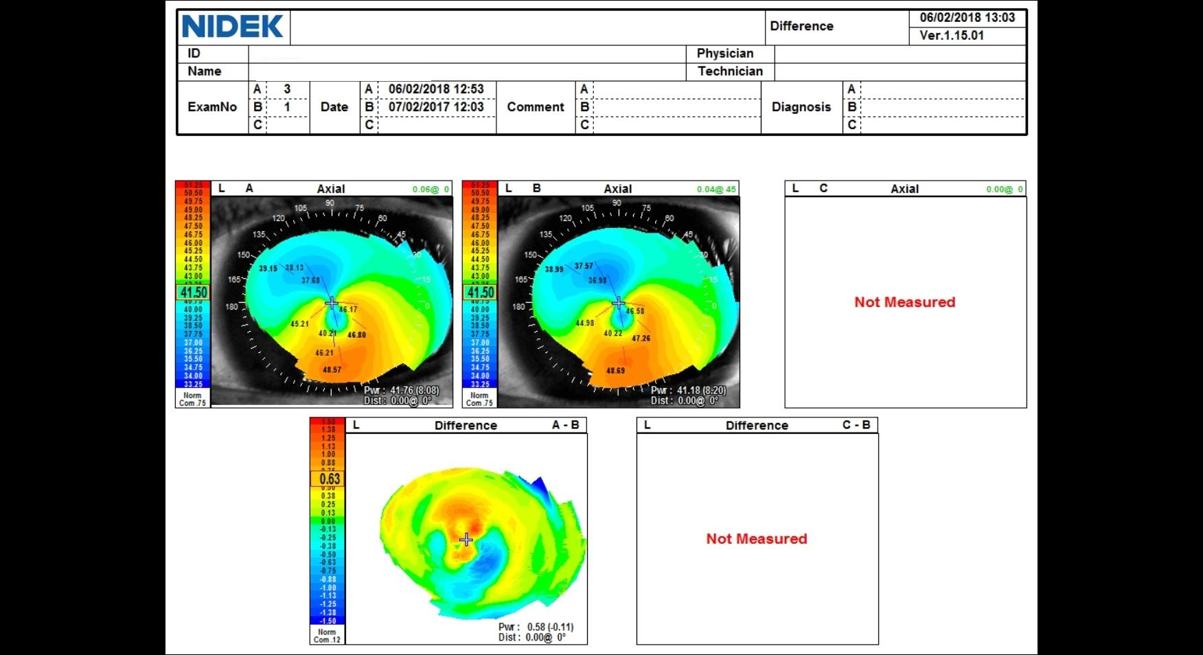 difference map, corneal ectasia, stability