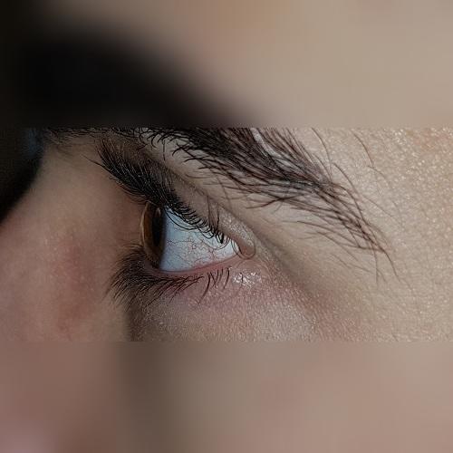 profile keratoconus