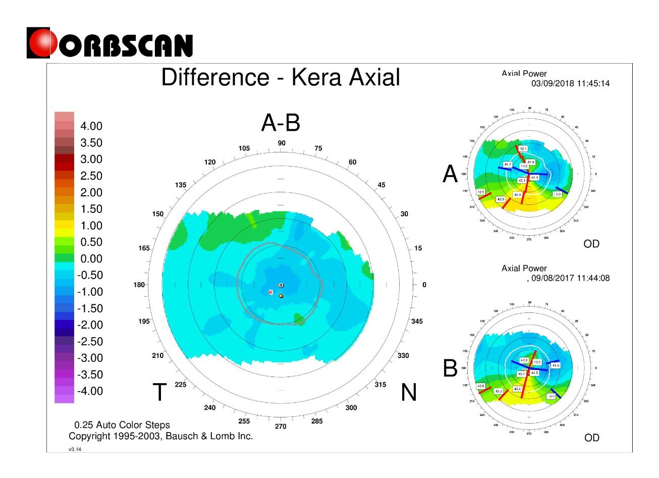 difference map orbscan post lasik ectasia