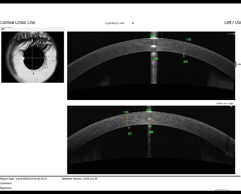 OCT left eye keratoconus