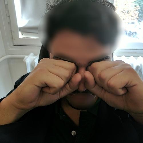 fist and knuckles eye rubbing keratoconus