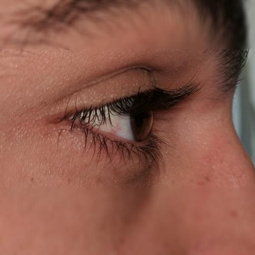 photo right eye