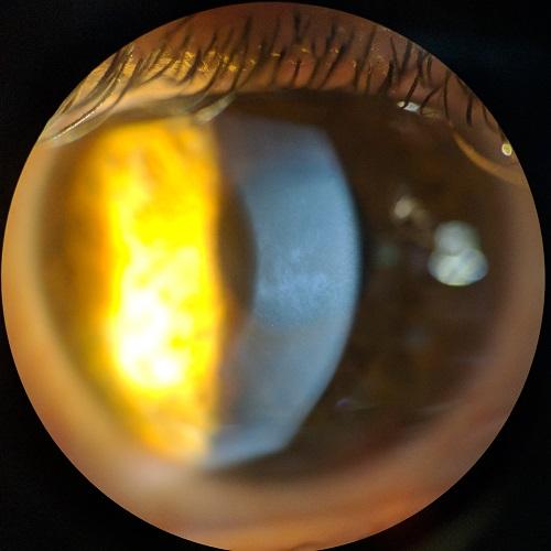 slit lamp showing haze in the cornea