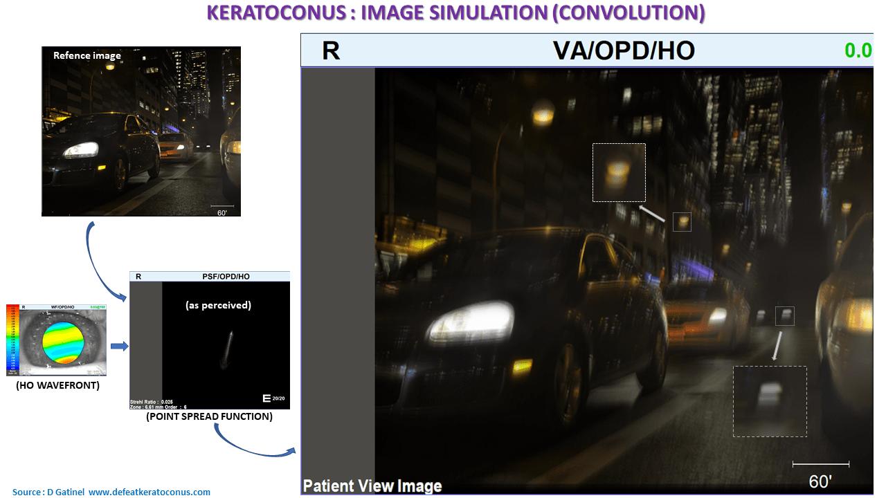 keratoconus vision simulation