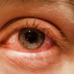 covid19 pink eye