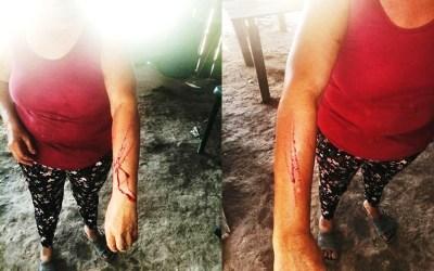 Amenaza y lesiones contra líder social privada de la libertad en área rural de San Luis de Palenque, Casanare