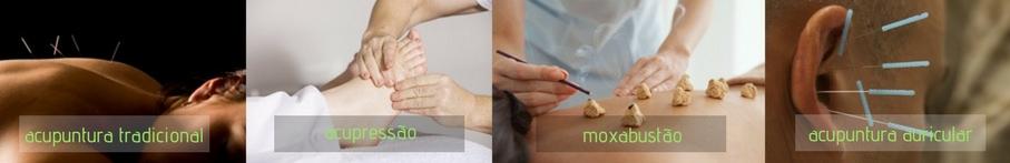 tipos-de-acupuntura