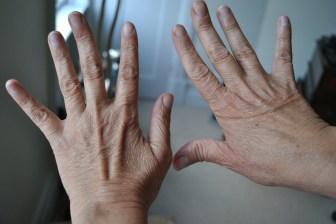 dr sister nanofat hands before