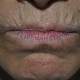 dr sister nanofat mouth before