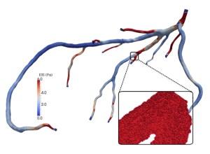 geometry of human coronary arteries from a CTA scan image