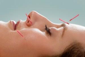 טיפול בשיתוק פנים בדיקור יפני