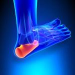טיפול בדיקור בכאבי דורבן