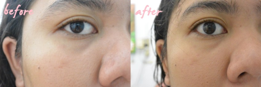 before after using RJ Facial Cleanser