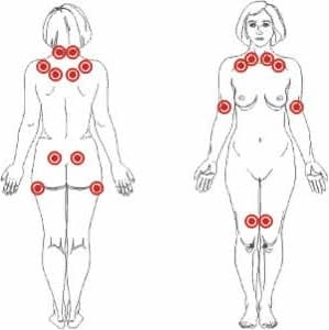 fibromialgia puntos