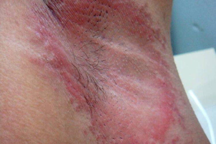 Under arm rash