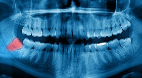 What do you know really know about your wisdom teeth?