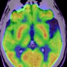 How does brain imaging help with dementia diagnostics?
