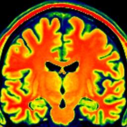 What is brain shrinkage/'atrophy' in dementia?